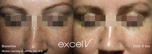 excel v - Pigmented Lesions