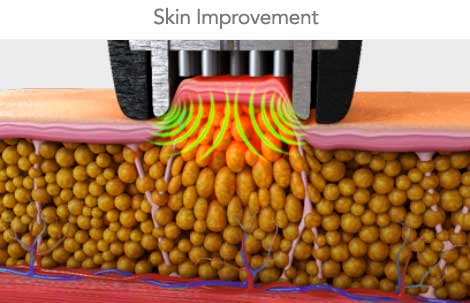 skin improvement with radio frequency device